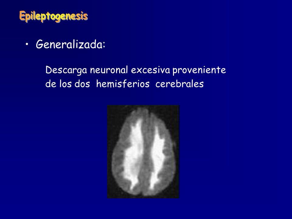 Epileptogenesis Generalizada: Descarga neuronal excesiva proveniente