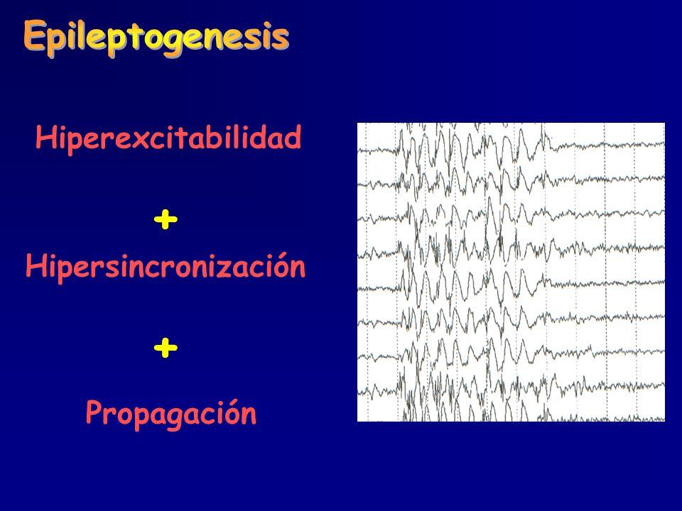 + Hipersincronización