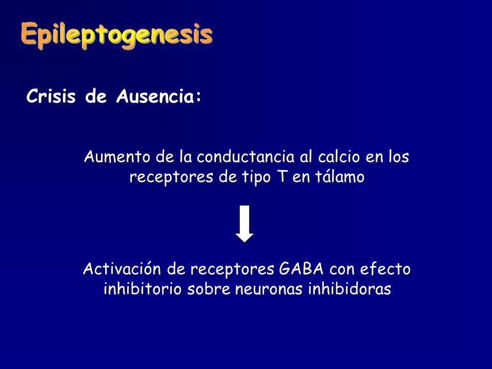 Epileptogenesis Crisis de Ausencia: