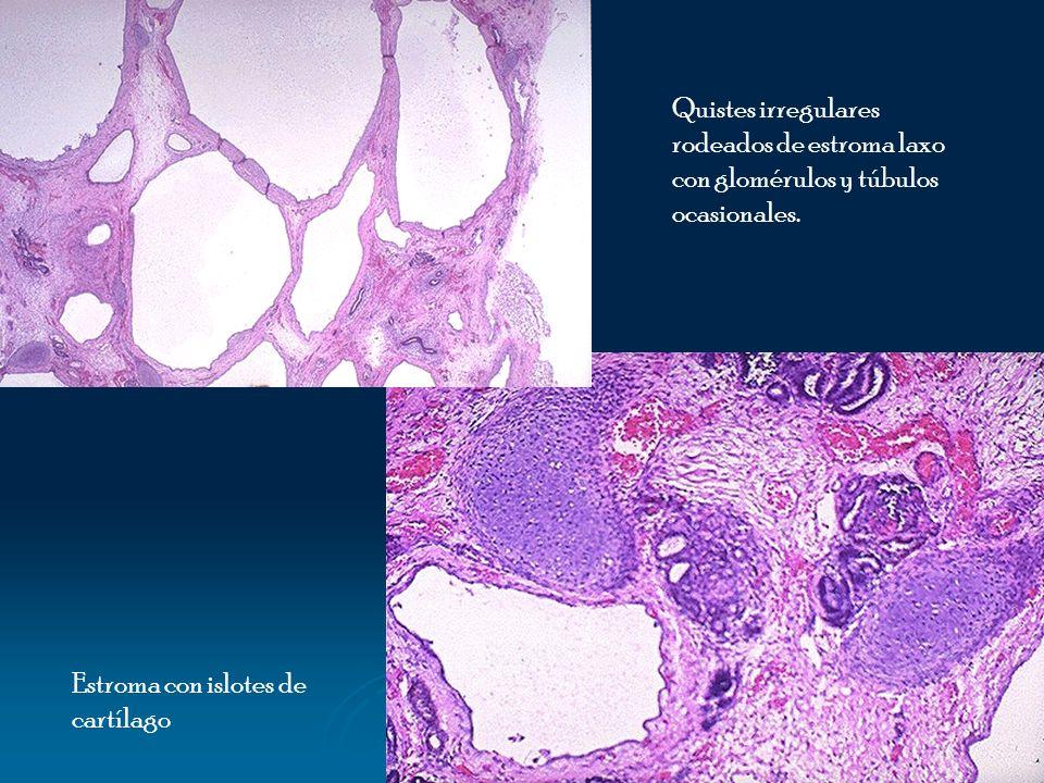 Quistes irregulares rodeados de estroma laxo con glomérulos y túbulos ocasionales.
