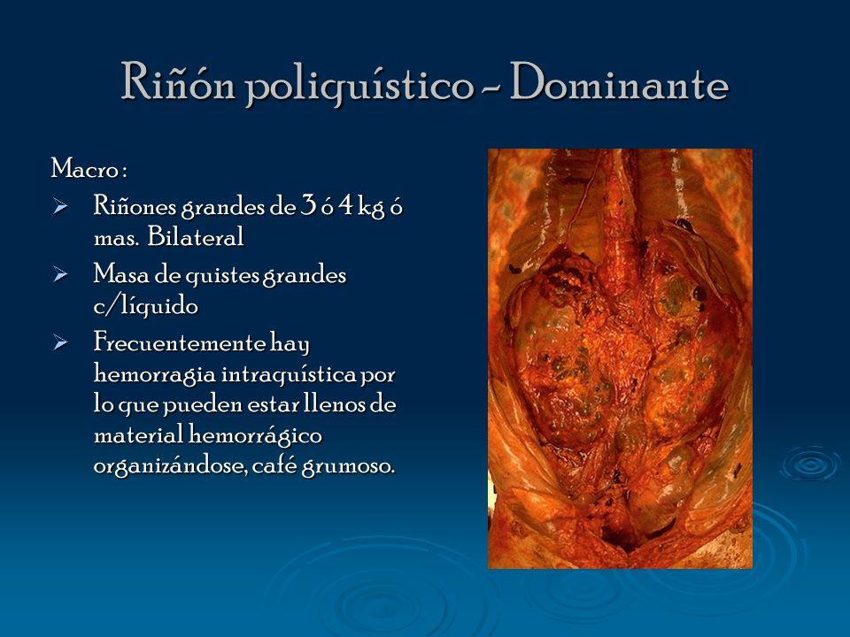Riñón poliquístico - Dominante
