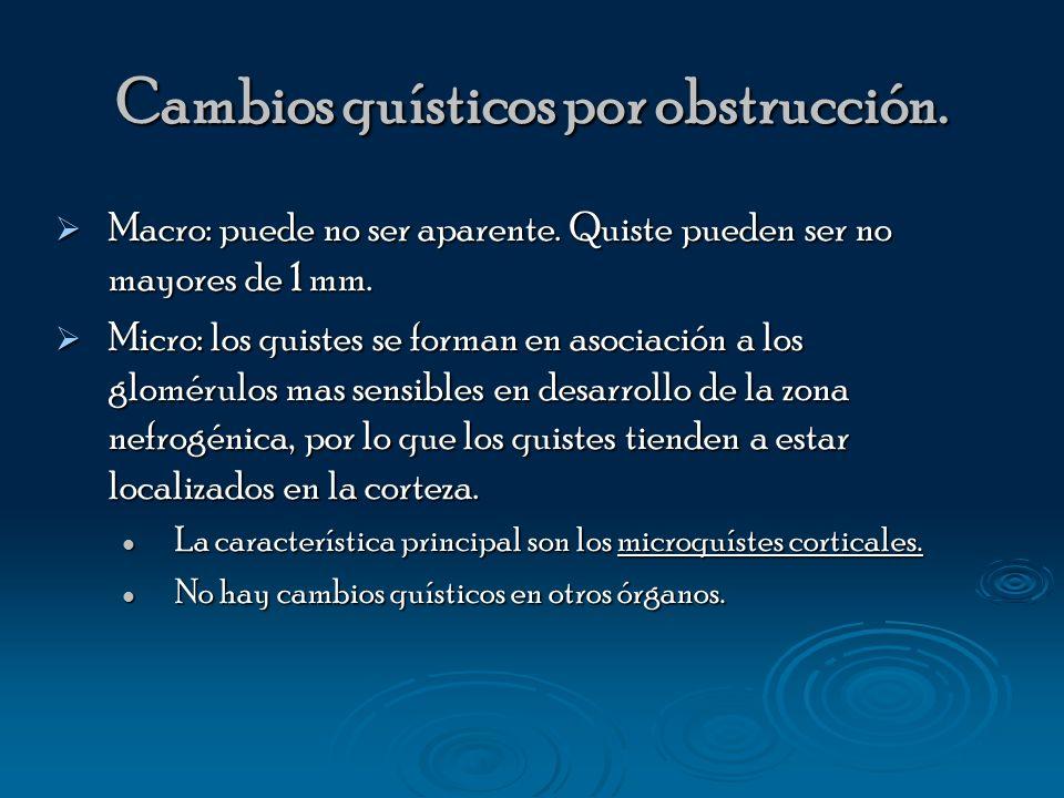 Cambios quísticos por obstrucción.