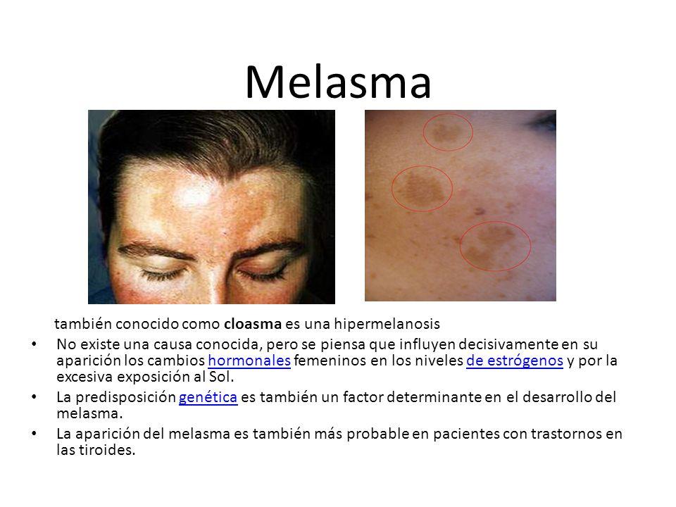 Melasma también conocido como cloasma es una hipermelanosis