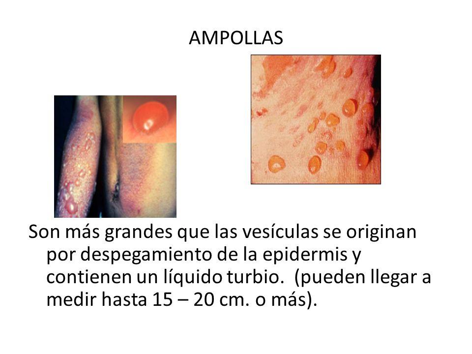 AMPOLLAS Son más grandes que las vesículas se originan por despegamiento de la epidermis y contienen un líquido turbio.