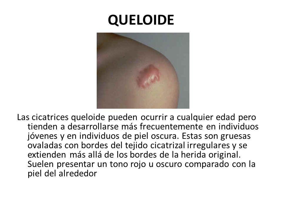 QUELOIDE