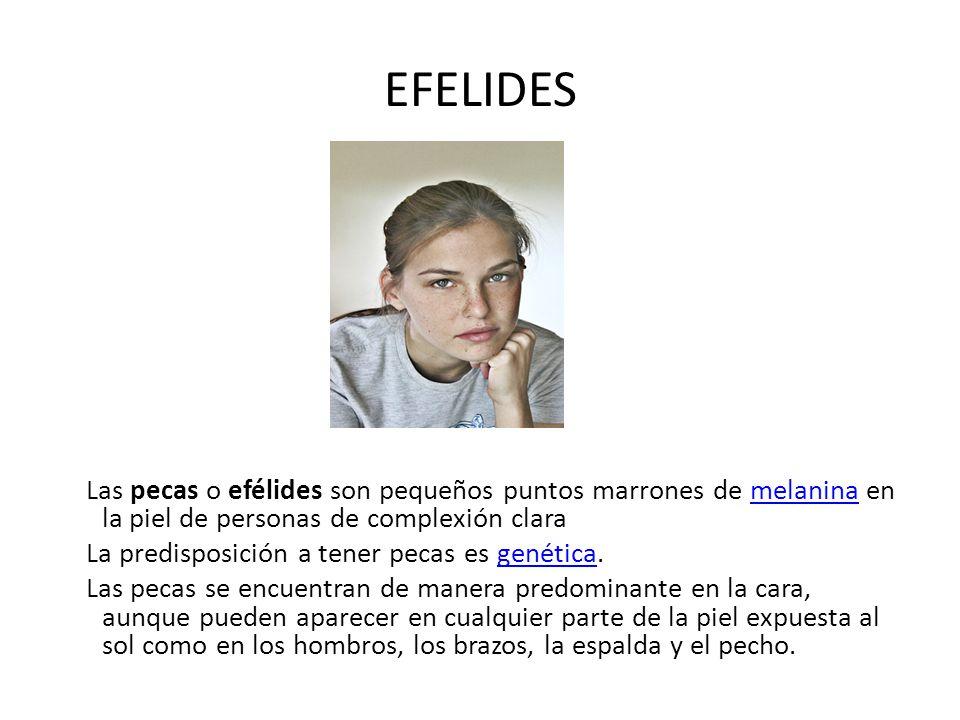 EFELIDES