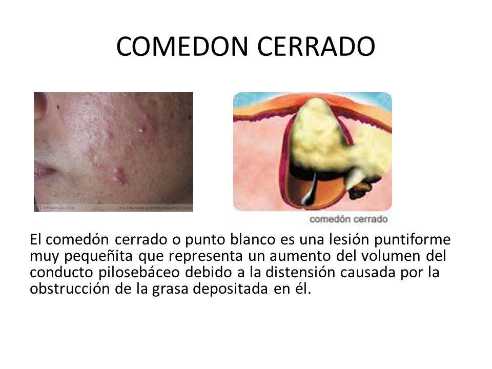 COMEDON CERRADO