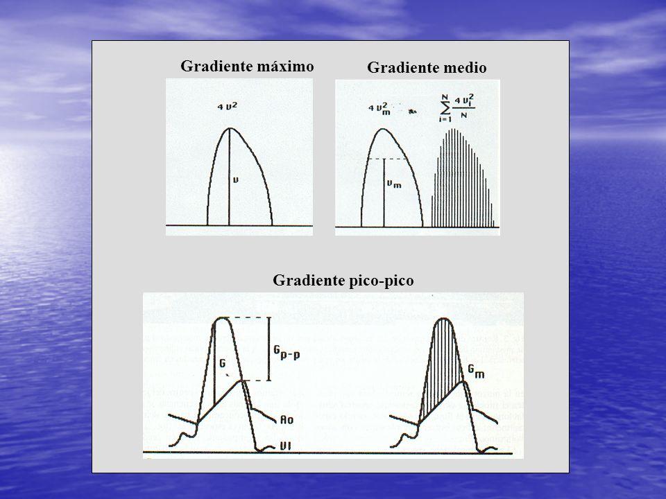 Gradiente máximo Gradiente medio Gradiente pico-pico