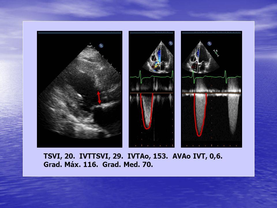 TSVI, 20. IVTTSVI, 29. IVTAo, 153. AVAo IVT, 0,6.