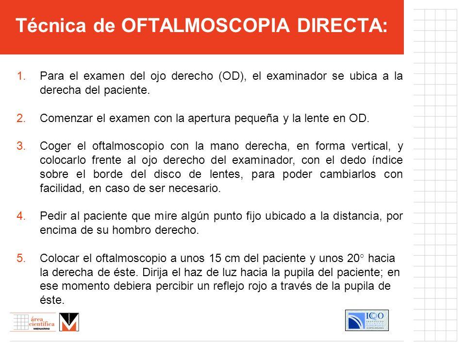 Técnica de OFTALMOSCOPIA DIRECTA:
