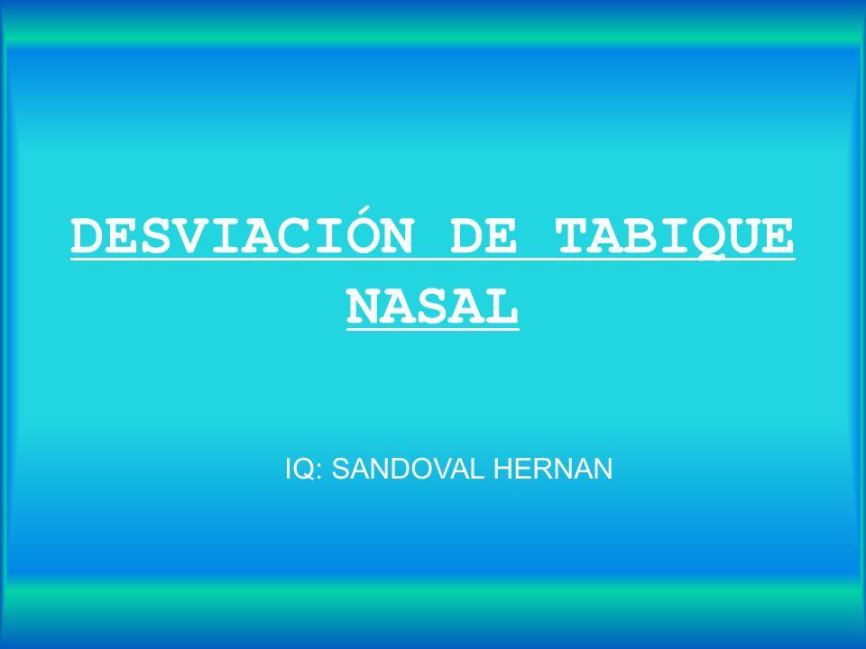 DESVIACIÓN DE TABIQUE NASAL