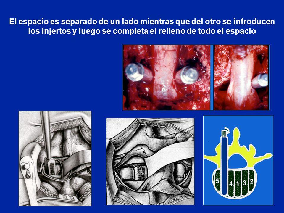 Espondilolistesis por lisis del istmo ppt descargar for Espejo que se ve por el otro lado