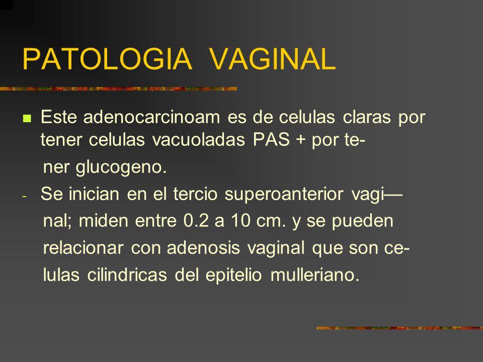 PATOLOGIA VAGINAL Este adenocarcinoam es de celulas claras por tener celulas vacuoladas PAS + por te-