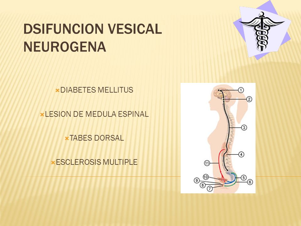 DSIFUNCION VESICAL NEUROGENA