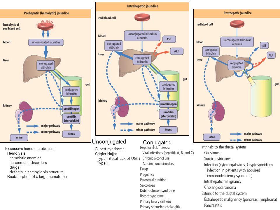 Unconjugated Conjugated Gilbert syndrome Crigler-Najjar