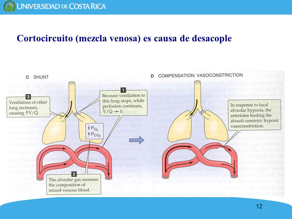 Cortocircuito (mezcla venosa) es causa de desacople