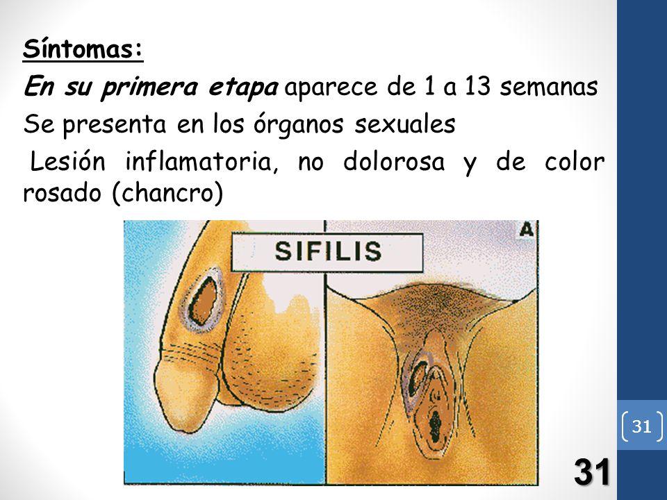 31 Síntomas: En su primera etapa aparece de 1 a 13 semanas