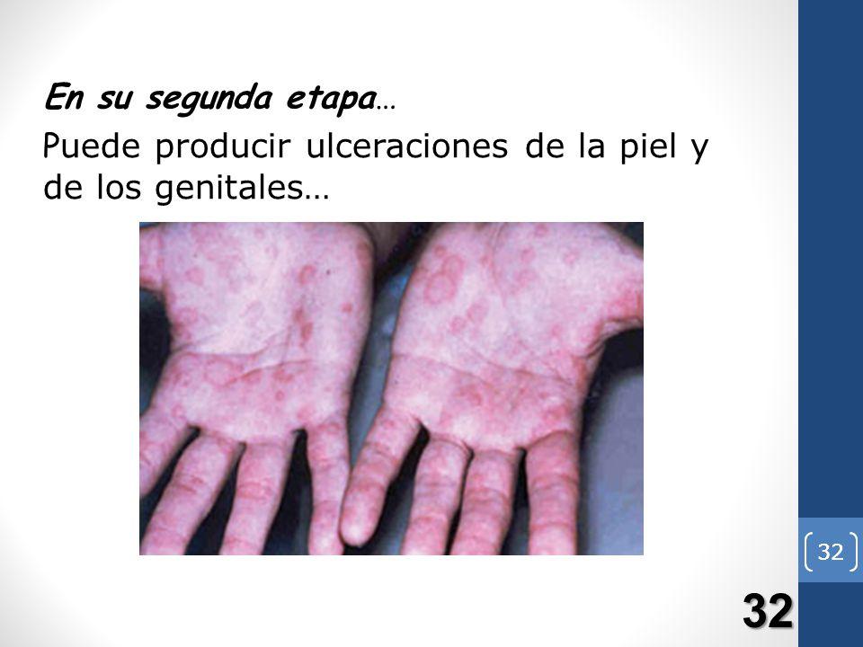 En su segunda etapa… Puede producir ulceraciones de la piel y de los genitales… 32 32