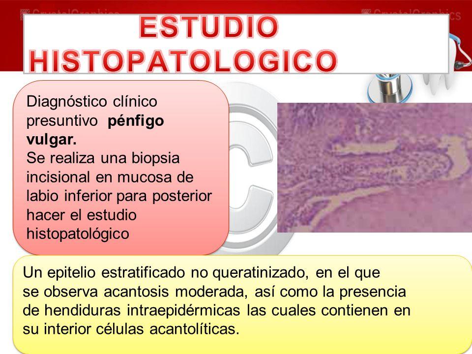 ESTUDIO HISTOPATOLOGICO