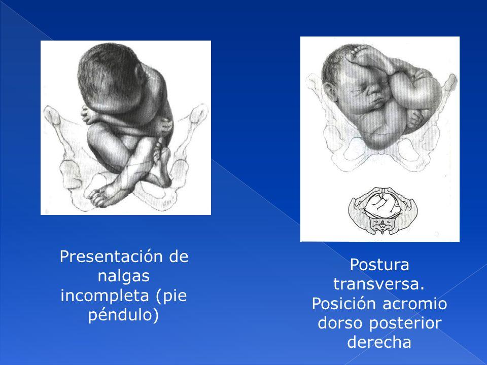 Presentación de nalgas incompleta (pie péndulo)