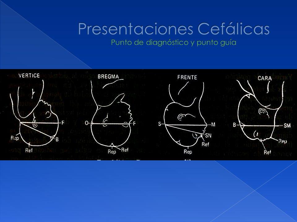 Presentaciones Cefálicas Punto de diagnóstico y punto guía
