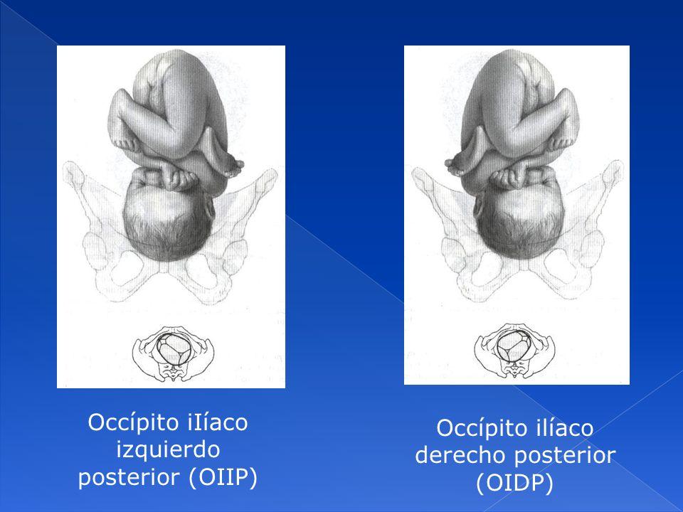 Occípito iIíaco izquierdo posterior (OIIP)