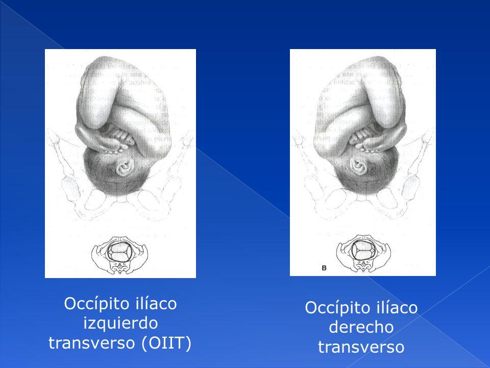 Occípito ilíaco izquierdo transverso (OIIT)