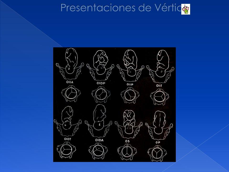 Presentaciones de Vértice