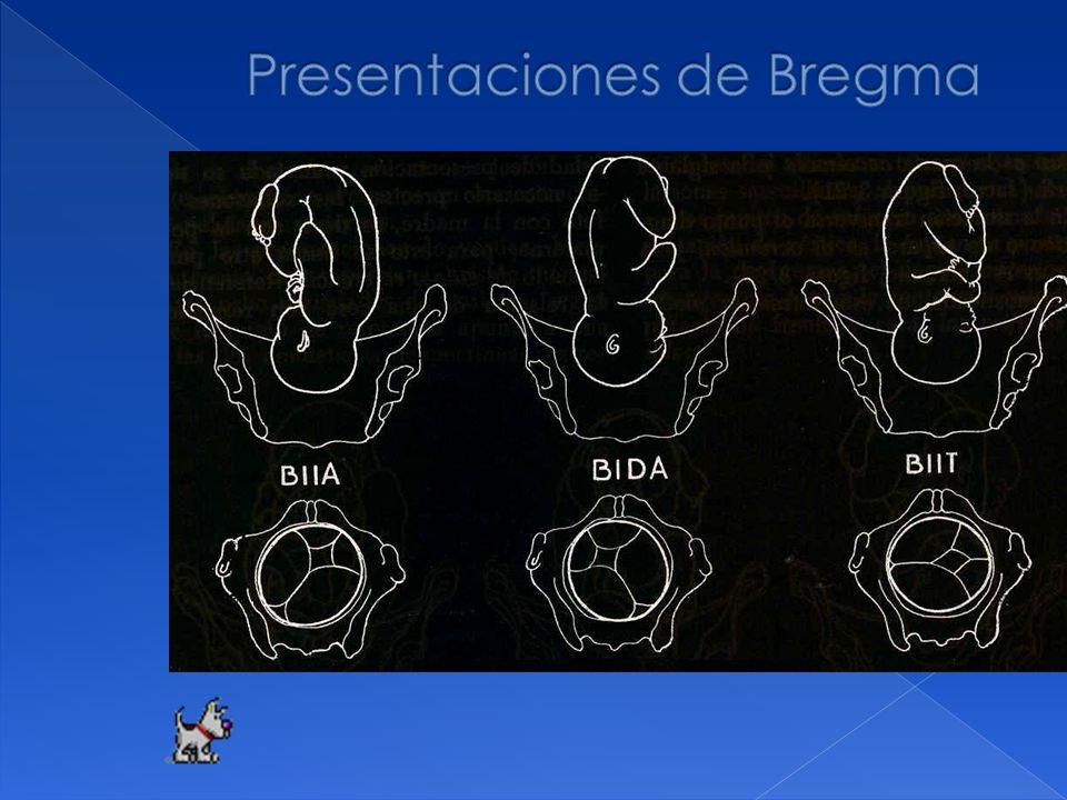 Presentaciones de Bregma