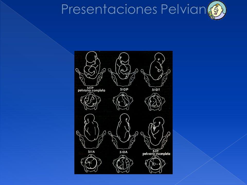 Presentaciones Pelvianas