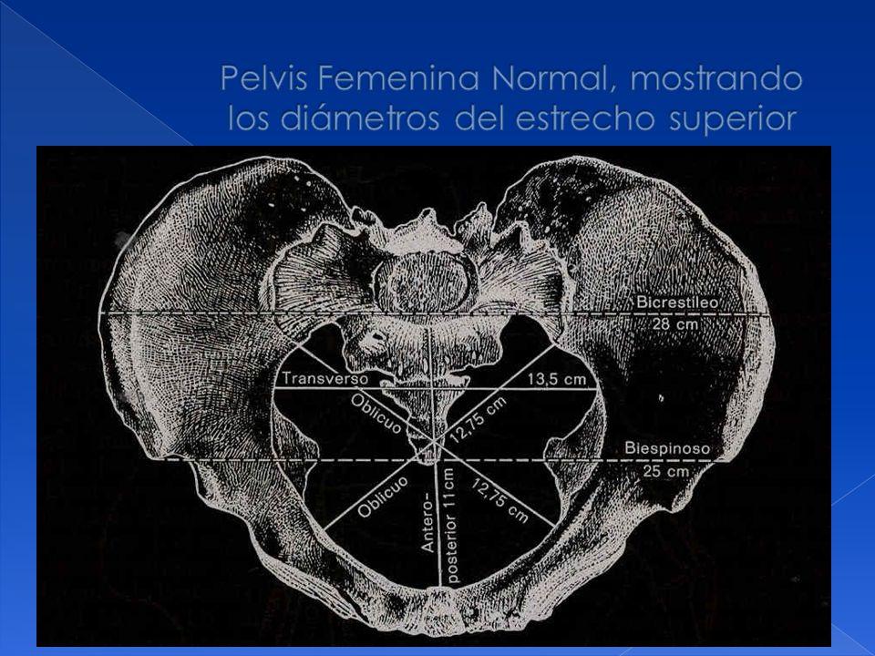 Pelvis Femenina Normal, mostrando los diámetros del estrecho superior