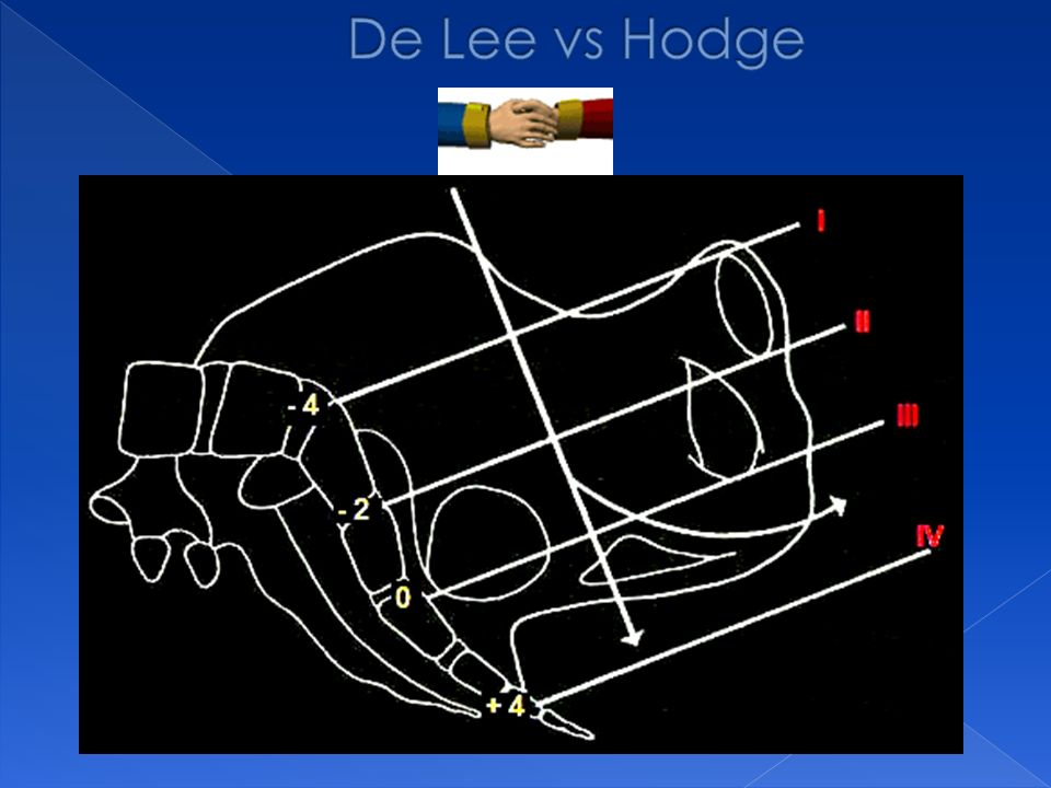 De Lee vs Hodge