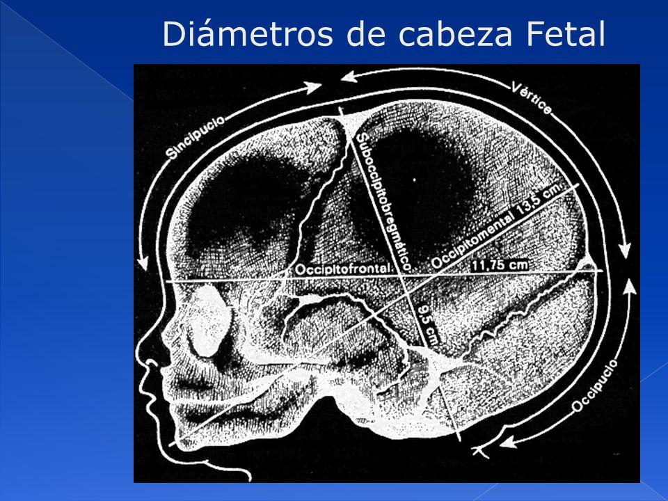Diámetros de cabeza Fetal