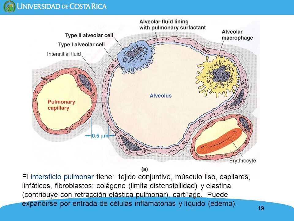 El intersticio pulmonar tiene: tejido conjuntivo, músculo liso, capilares, linfáticos, fibroblastos: colágeno (limita distensibilidad) y elastina (contribuye con retracción elástica pulmonar), cartílago. Puede expandirse por entrada de células inflamatorias y líquido (edema).