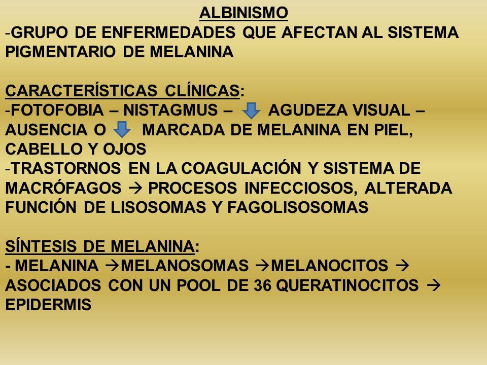 ALBINISMO GRUPO DE ENFERMEDADES QUE AFECTAN AL SISTEMA PIGMENTARIO DE MELANINA. CARACTERÍSTICAS CLÍNICAS: