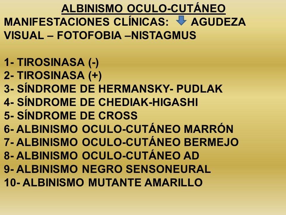 ALBINISMO OCULO-CUTÁNEO