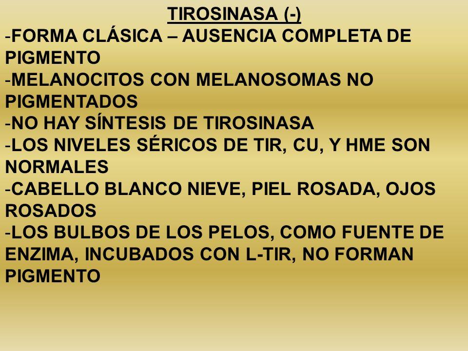 TIROSINASA (-) FORMA CLÁSICA – AUSENCIA COMPLETA DE PIGMENTO. MELANOCITOS CON MELANOSOMAS NO PIGMENTADOS.