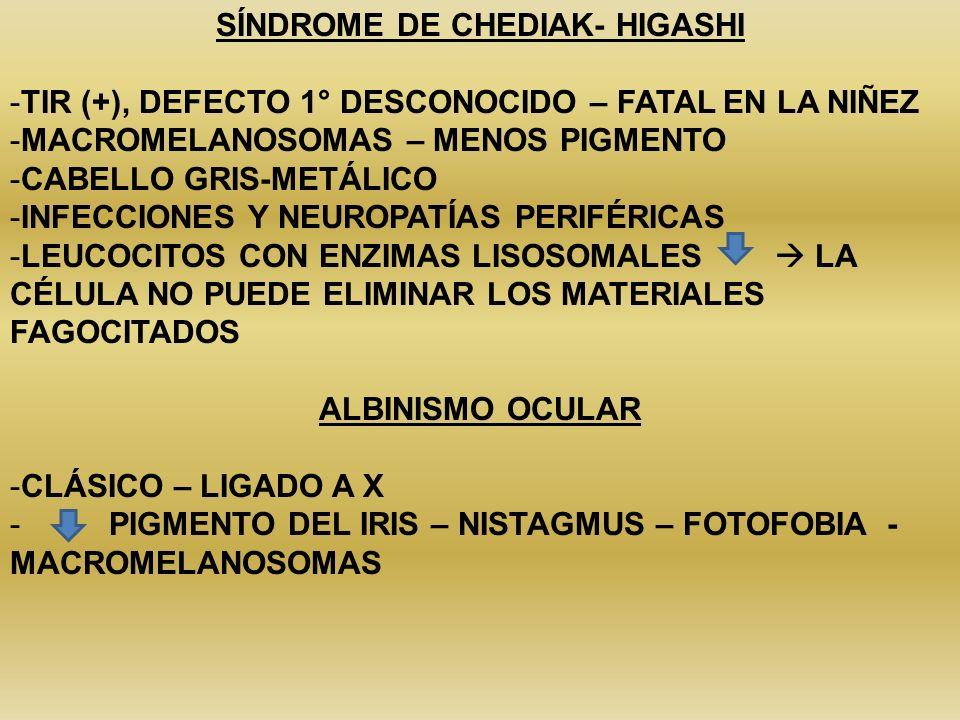 SÍNDROME DE CHEDIAK- HIGASHI