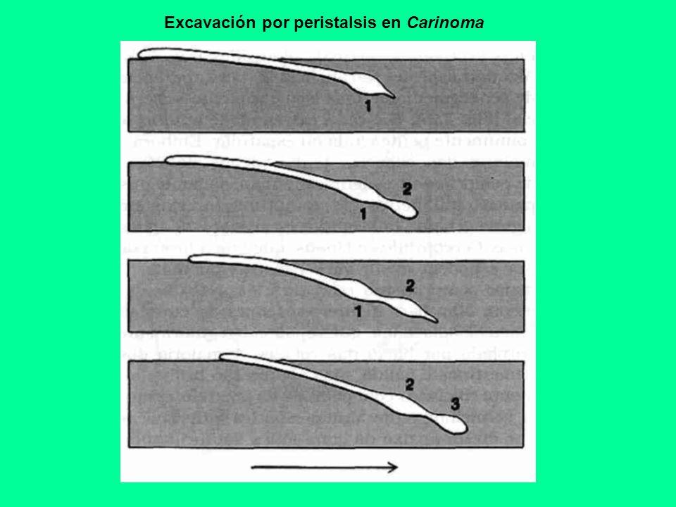 Excavación por peristalsis en Carinoma
