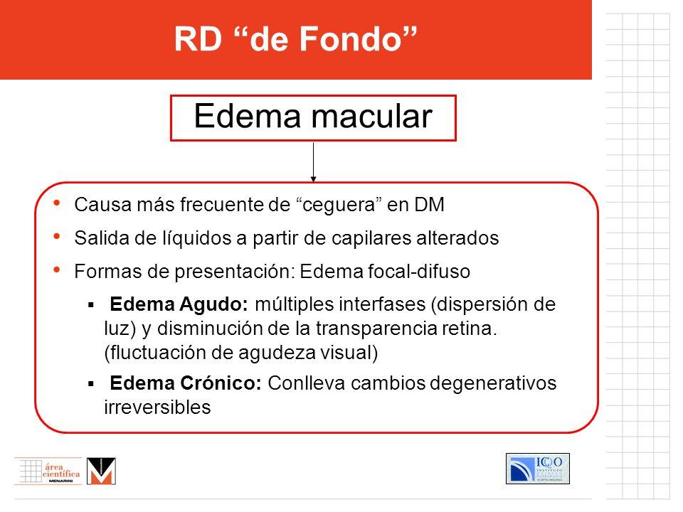 RD de Fondo Edema macular Causa más frecuente de ceguera en DM