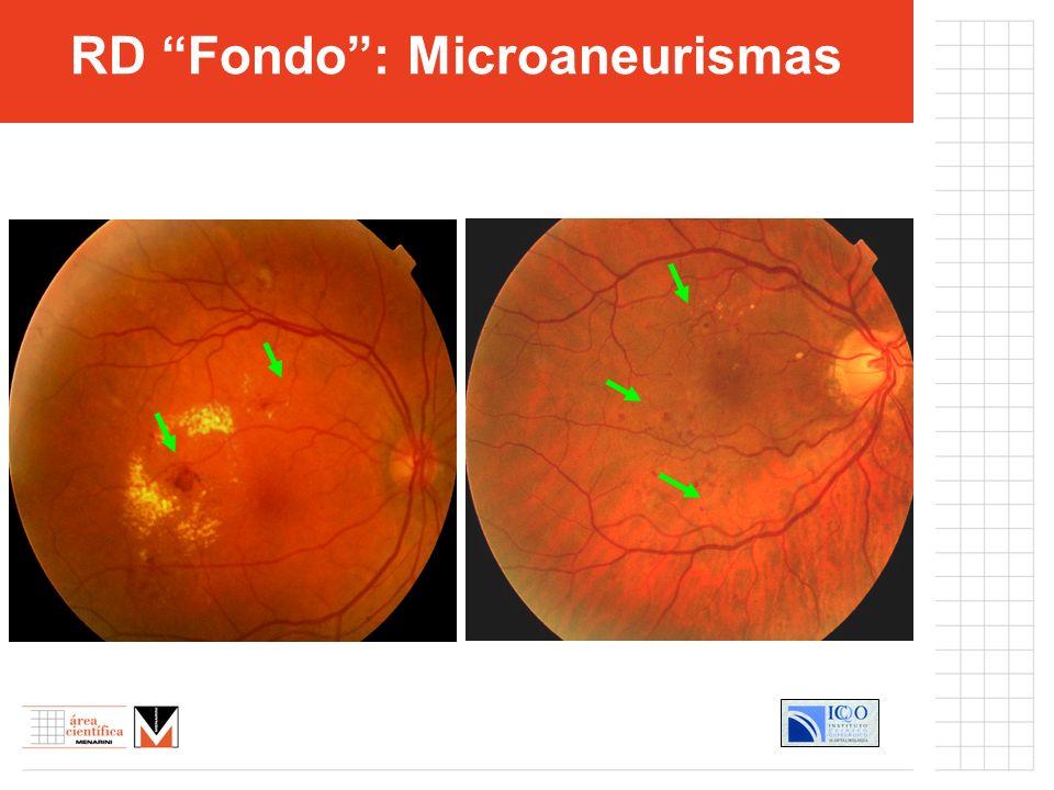 RD Fondo : Microaneurismas