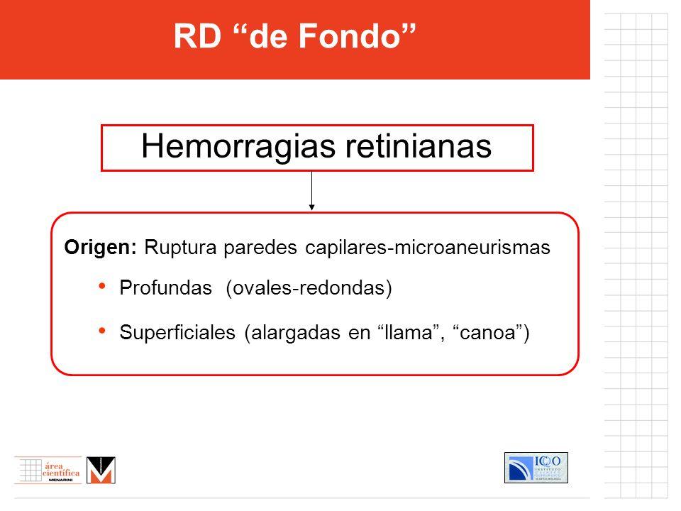 Hemorragias retinianas