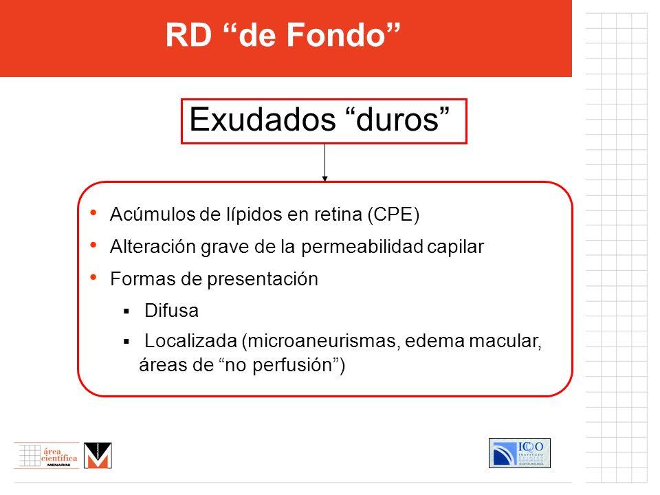 RD de Fondo Exudados duros Acúmulos de lípidos en retina (CPE)
