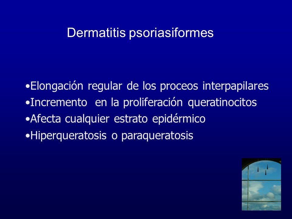 Dermatitis psoriasiformes