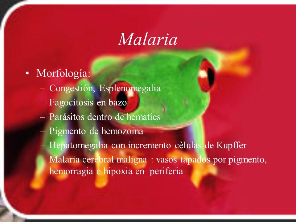 Malaria Morfología: Congestión, Esplenomegalia Fagocitosis en bazo