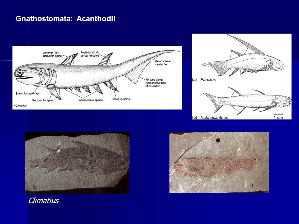 Gnathostomata: Acanthodii