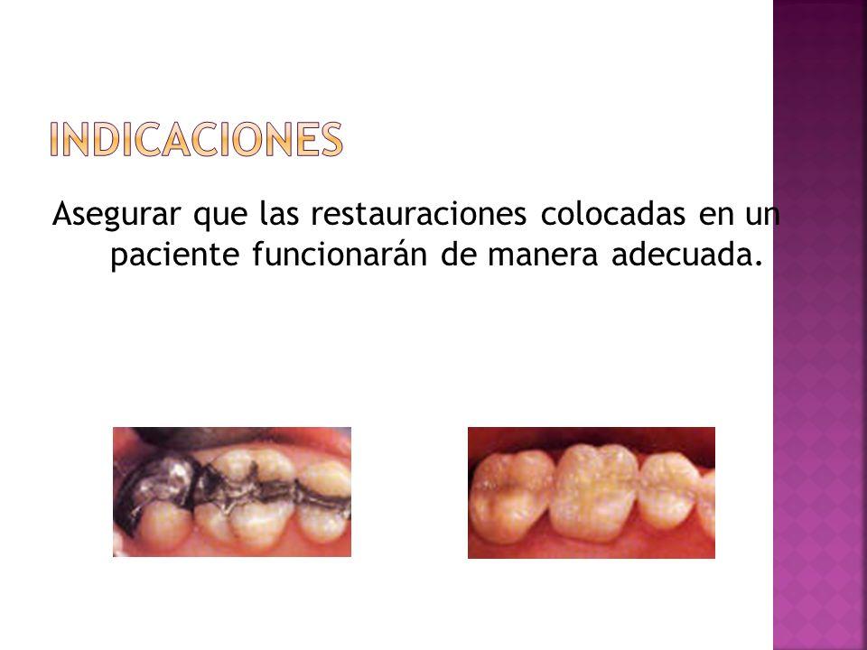 IndicacionesAsegurar que las restauraciones colocadas en un paciente funcionarán de manera adecuada.