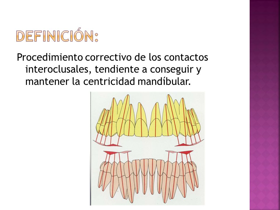 Definición:Procedimiento correctivo de los contactos interoclusales, tendiente a conseguir y mantener la centricidad mandíbular.