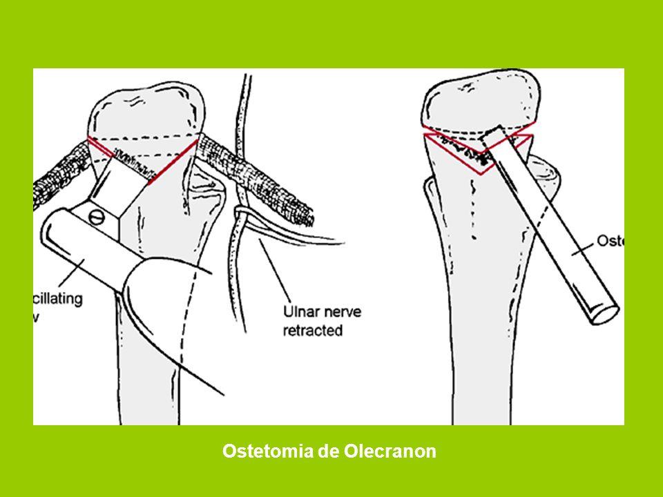 Ostetomia de Olecranon