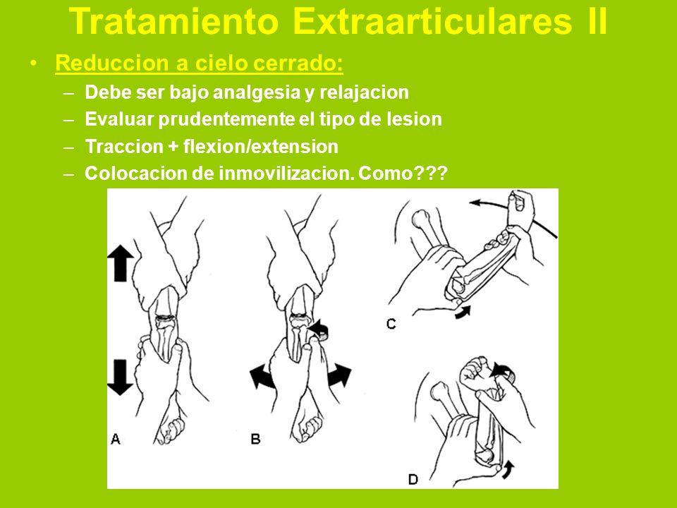Tratamiento Extraarticulares II